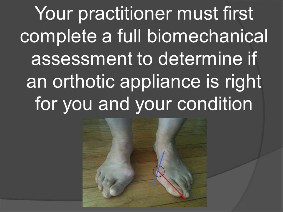 Your practitioner must first complete a full biomechanical assessment to determine if an orthotic appliance is right for you and your condition