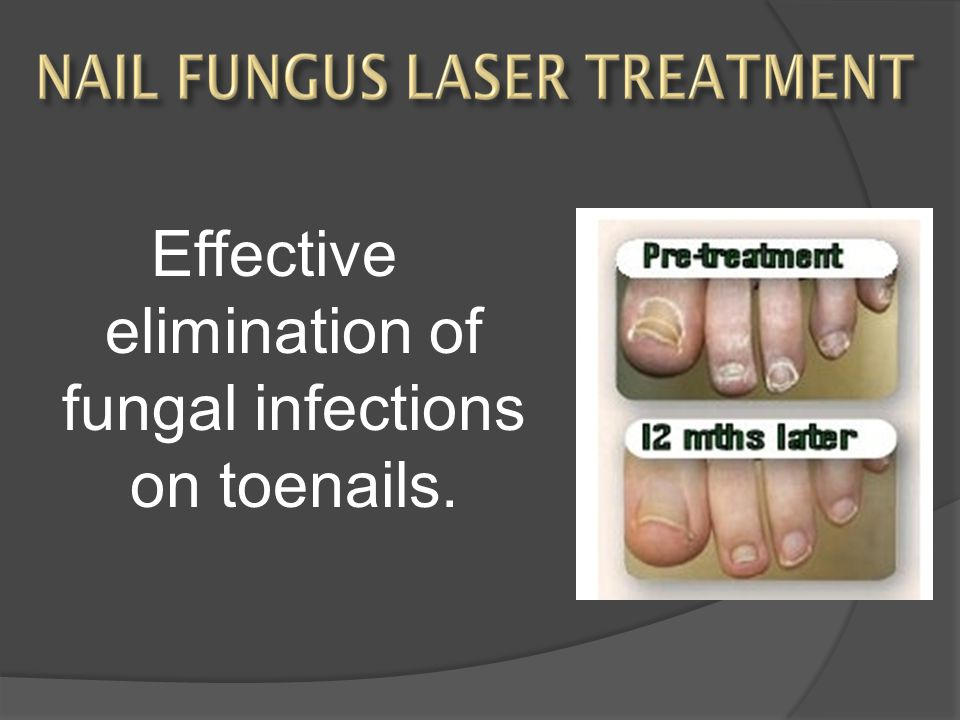 Effective elimination of fungal infections on toenails.
