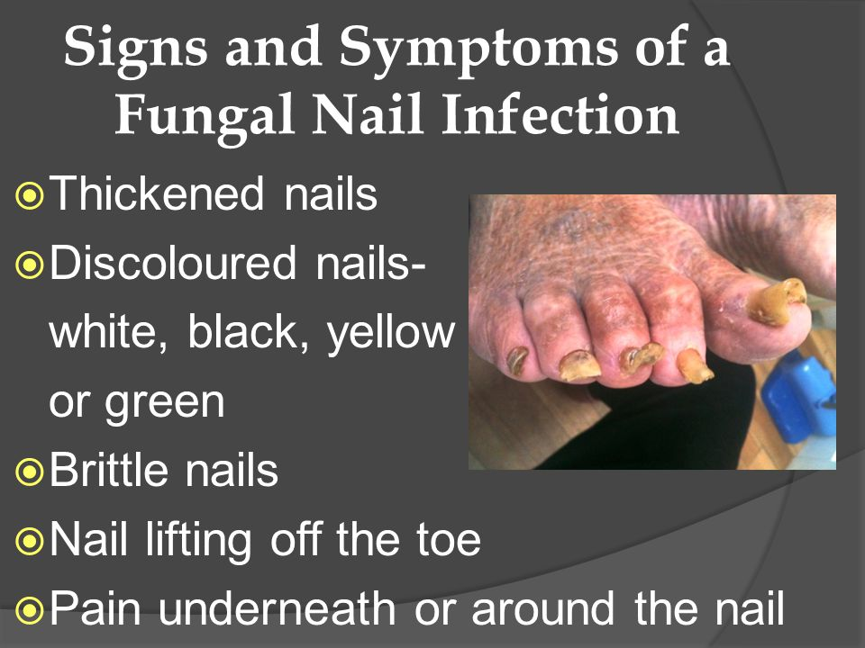 Signs and Symptoms of a Fungal Nail Infection Thickened nails Discoloured nails- white, black, yellow or green Brittle nails Nail lifting off the toe