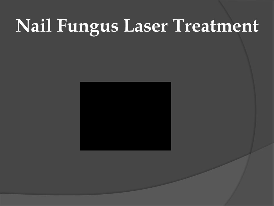 Nail Fungus Laser Treatment