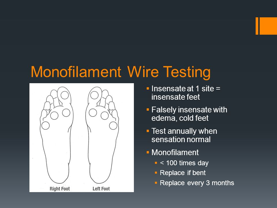 Monofilament Wire Testing Insensate at 1 site = insensate feet Falsely insensate with edema, cold feet Test annually when sensation normal Monofilamen