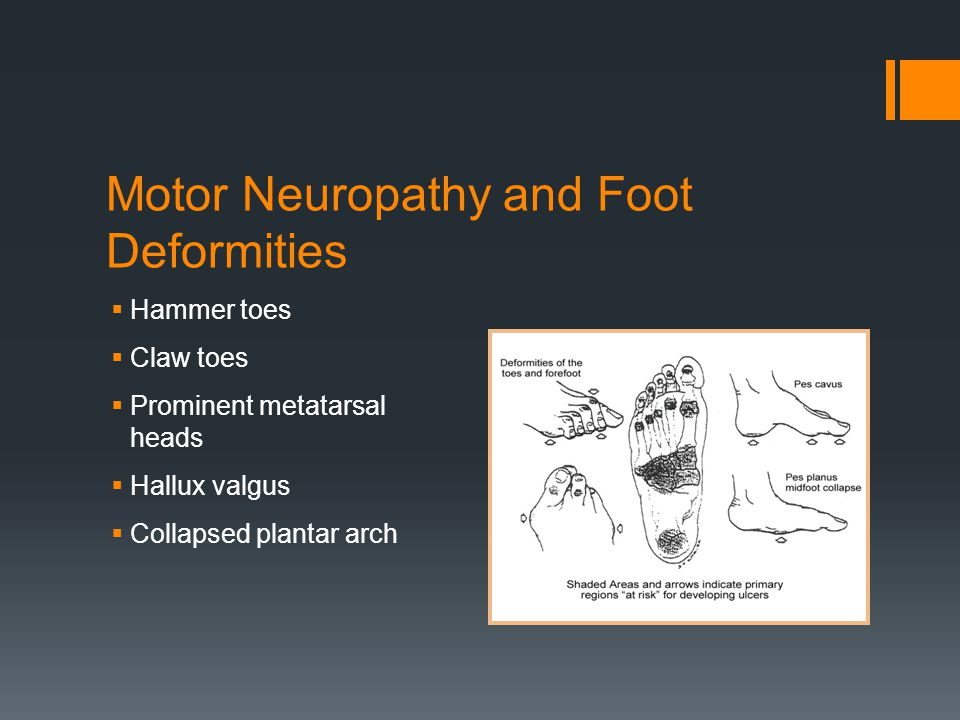 Motor Neuropathy and Foot Deformities Hammer toes Claw toes Prominent metatarsal heads Hallux valgus Collapsed plantar arch