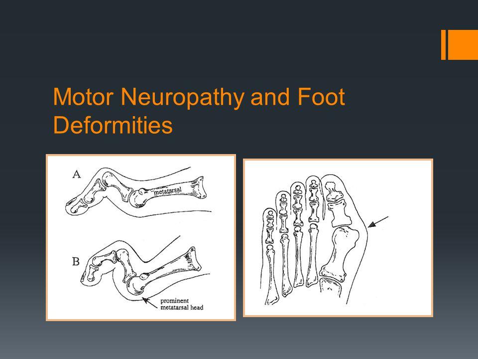 Motor Neuropathy and Foot Deformities