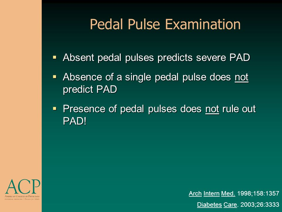Pedal Pulse Examination Absent pedal pulses predicts severe PAD Absent pedal pulses predicts severe PAD Absence of a single pedal pulse does not predi