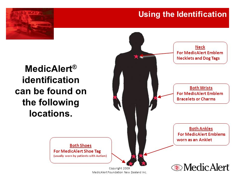 Various styles of MedicAlert ® identification used internationally Medical ID Products Copyright 2009 MedicAlert Foundation New Zealand Inc.
