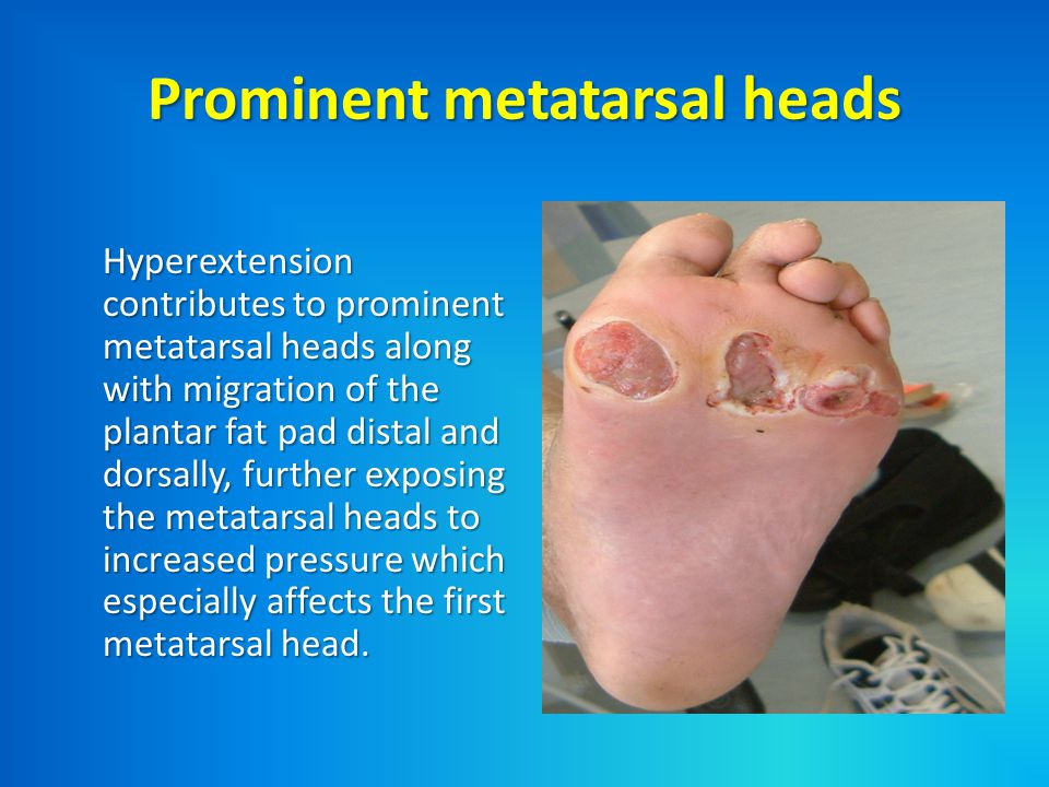 Changes in mechanical stresses can be due to : - 1.Skin changes - The skin and soft tissues are less pliable due to glycosylation, leading to skin breakdown and callus formation due to decreased tolerability to friction and restricted joint motion.