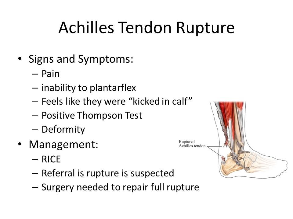 Achilles Tendon Rupture Signs and Symptoms: – Pain – inability to plantarflex – Feels like they were kicked in calf – Positive Thompson Test – Deformi