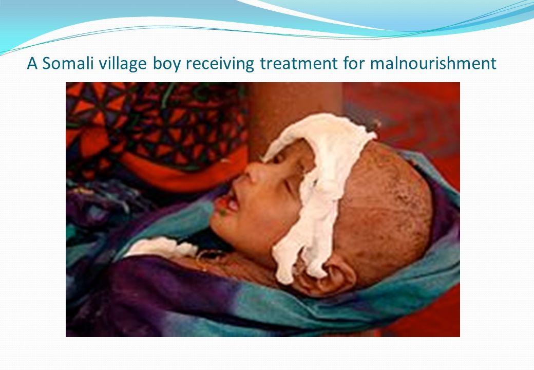 A Somali village boy receiving treatment for malnourishment