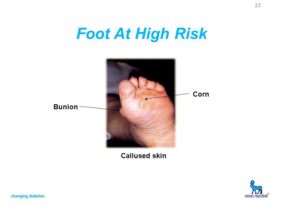 23 Callused skin Bunion Corn Foot At High Risk