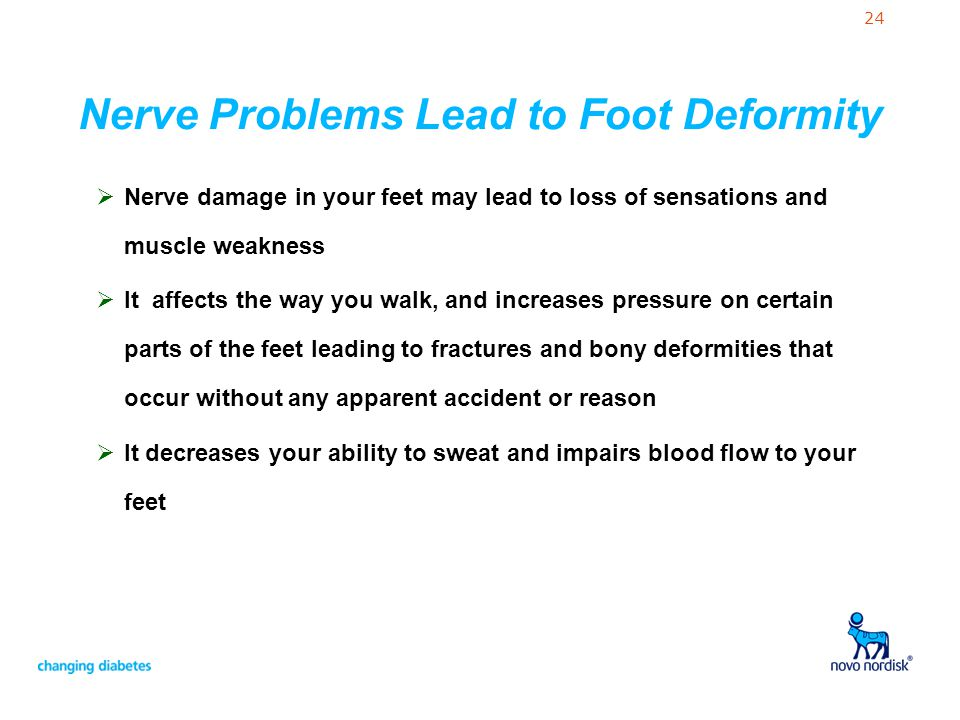 24 Nerve Problems Lead to Foot Deformity Nerve damage in your feet may lead to loss of sensations and muscle weakness It affects the way you walk, and