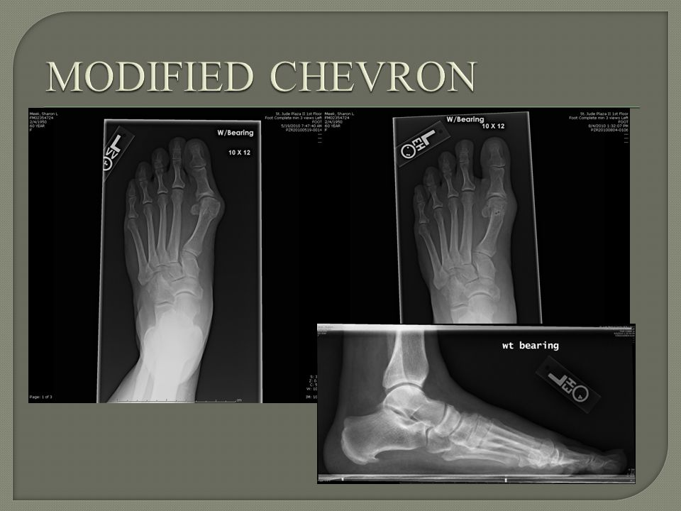 Incongruent Joint Severe deformity IMA >20 degrees, HV >40 degrees Instability of the 1 st Ray Lapidus 1 st MTP fusion