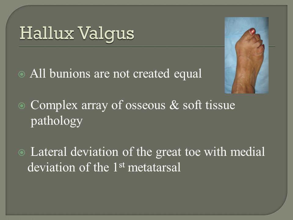 >100 procedures for Hallux Valgus Procedure should address deformity Soft tissue procedure combined with bony correction most common procedure Chevron Osteotomy with Silver eminence resection most common procedure
