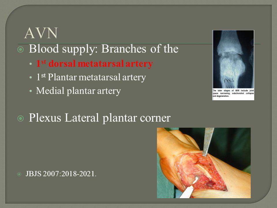 Blood supply: Branches of the 1 st dorsal metatarsal artery 1 st Plantar metatarsal artery Medial plantar artery Plexus Lateral plantar corner JBJS 2007:2018-2021.