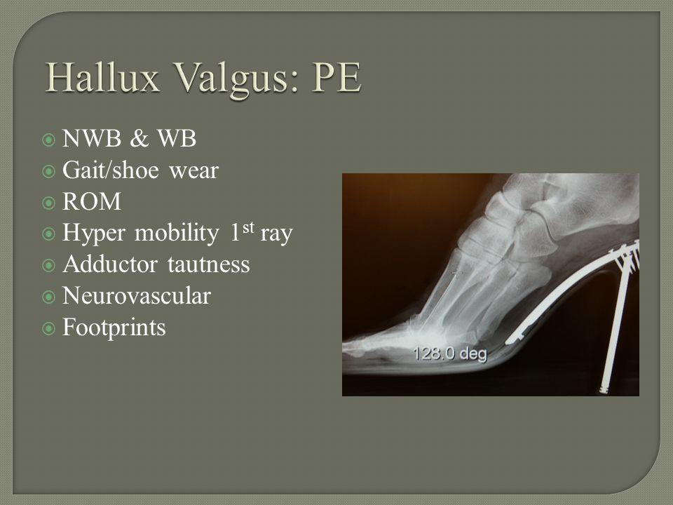 NWB & WB Gait/shoe wear ROM Hyper mobility 1 st ray Adductor tautness Neurovascular Footprints