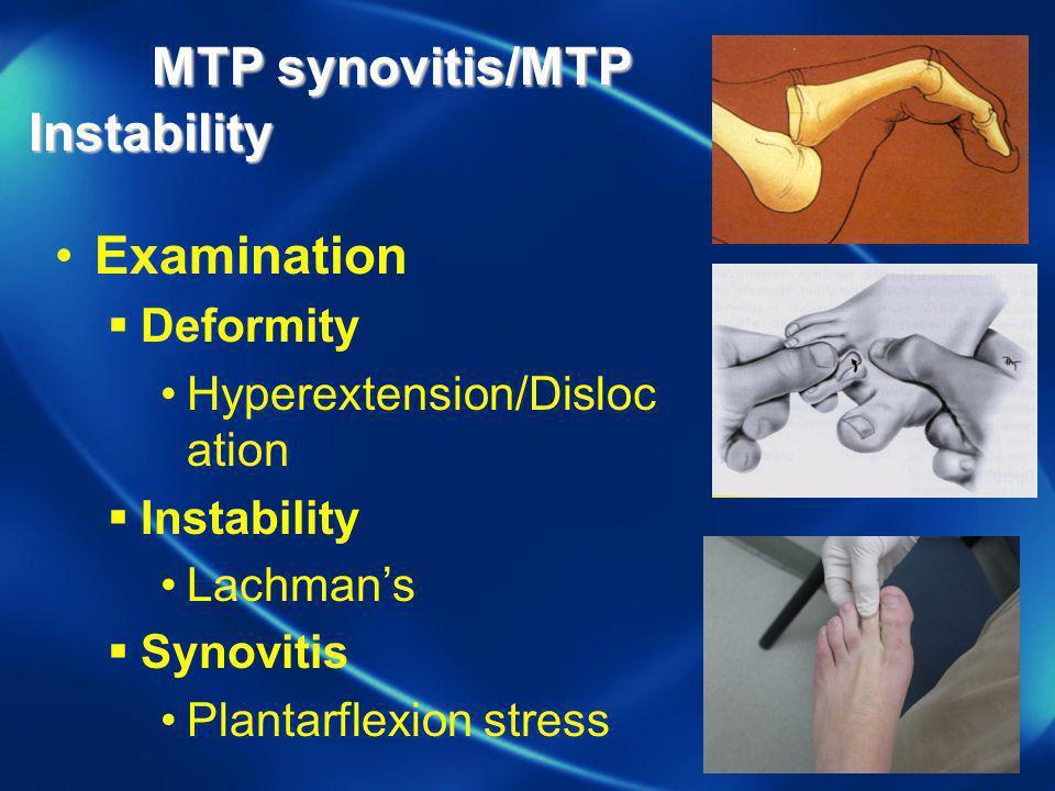 MTP synovitis/MTP Instability MTP synovitis/MTP Instability Examination Deformity Hyperextension/Disloc ation Instability Lachmans Synovitis Plantarfl