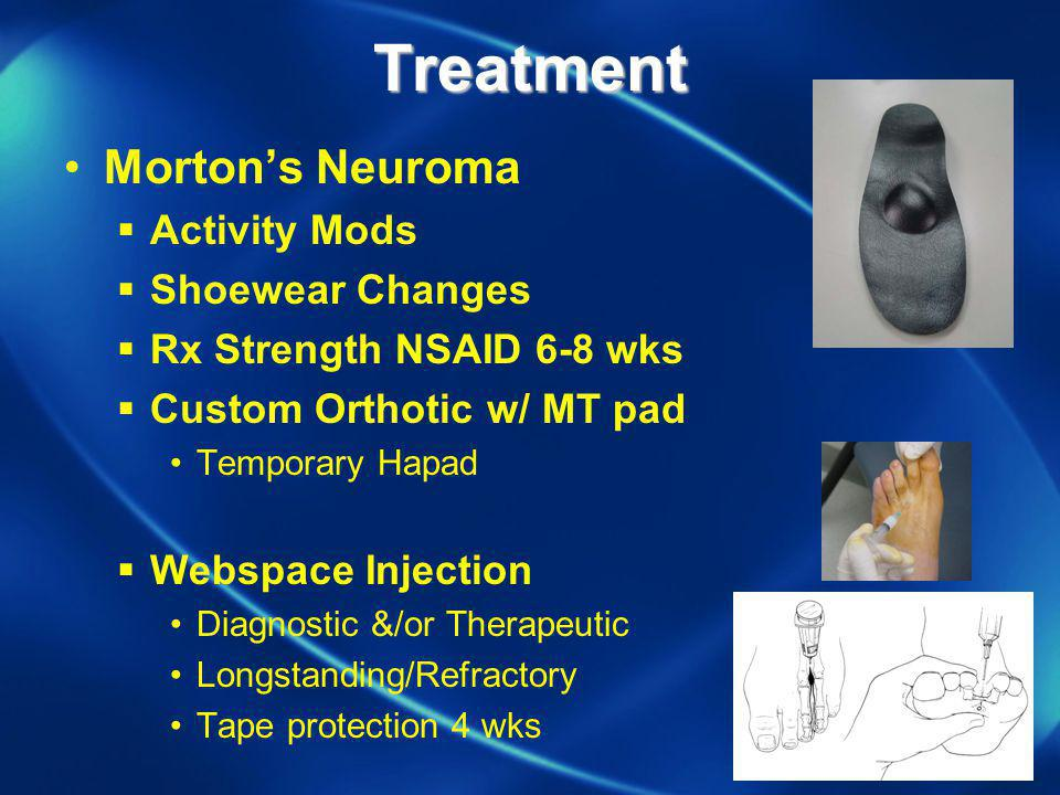 Treatment Mortons Neuroma Activity Mods Shoewear Changes Rx Strength NSAID 6-8 wks Custom Orthotic w/ MT pad Temporary Hapad Webspace Injection Diagno