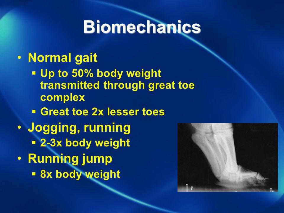 Biomechanics Normal gait Up to 50% body weight transmitted through great toe complex Great toe 2x lesser toes Jogging, running 2-3x body weight Runnin