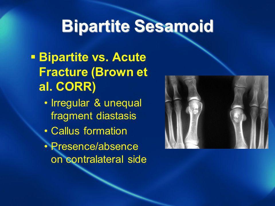 Bipartite Sesamoid Bipartite vs. Acute Fracture (Brown et al. CORR) Irregular & unequal fragment diastasis Callus formation Presence/absence on contra