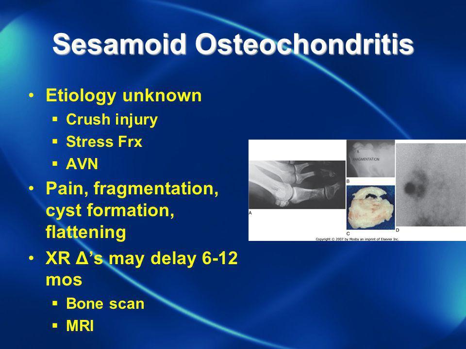 Sesamoid Osteochondritis Etiology unknown Crush injury Stress Frx AVN Pain, fragmentation, cyst formation, flattening XR Δs may delay 6-12 mos Bone sc