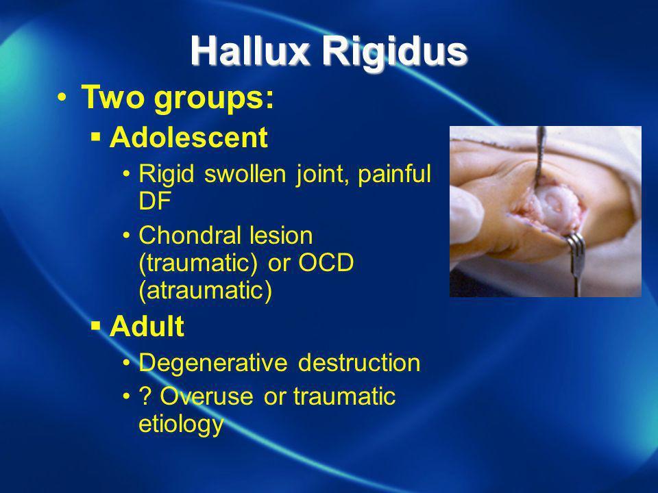 Hallux Rigidus Two groups: Adolescent Rigid swollen joint, painful DF Chondral lesion (traumatic) or OCD (atraumatic) Adult Degenerative destruction ?