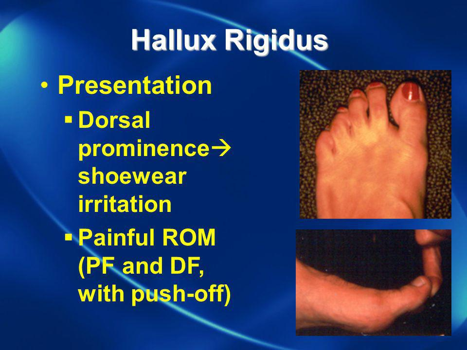 Hallux Rigidus Presentation Dorsal prominence shoewear irritation Painful ROM (PF and DF, with push-off)
