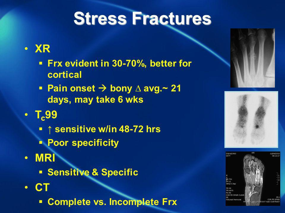 Stress Fractures XR Frx evident in 30-70%, better for cortical Pain onset bony avg.~ 21 days, may take 6 wks T c 99 sensitive w/in 48-72 hrs Poor spec