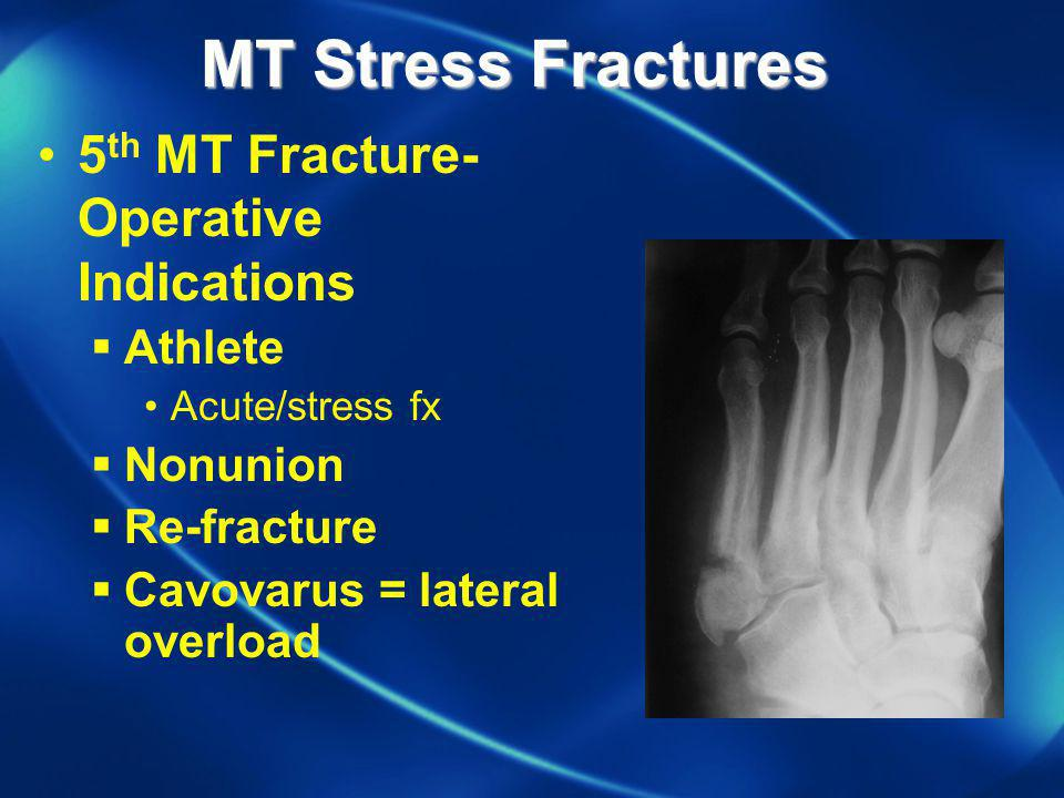 5 th MT Fracture- Operative Indications Athlete Acute/stress fx Nonunion Re-fracture Cavovarus = lateral overload