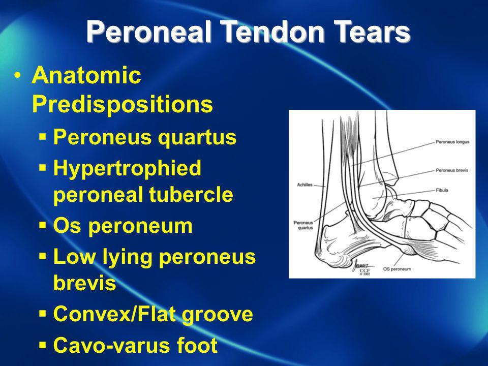 Peroneal Tendon Tears Anatomic Predispositions Peroneus quartus Hypertrophied peroneal tubercle Os peroneum Low lying peroneus brevis Convex/Flat groo