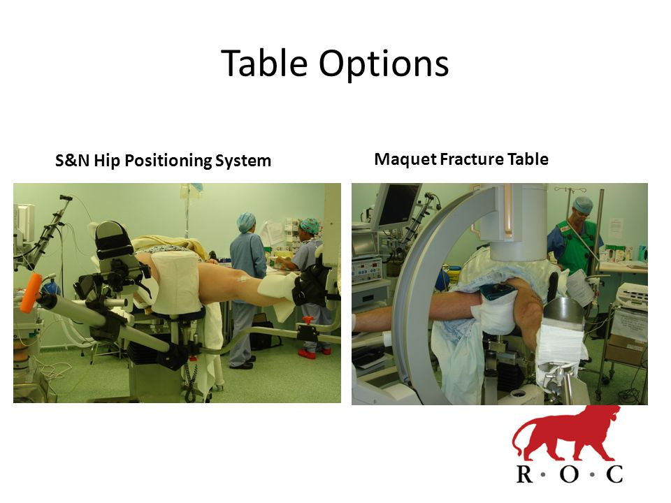 Table Options Maquet Fracture Table S&N Hip Positioning System