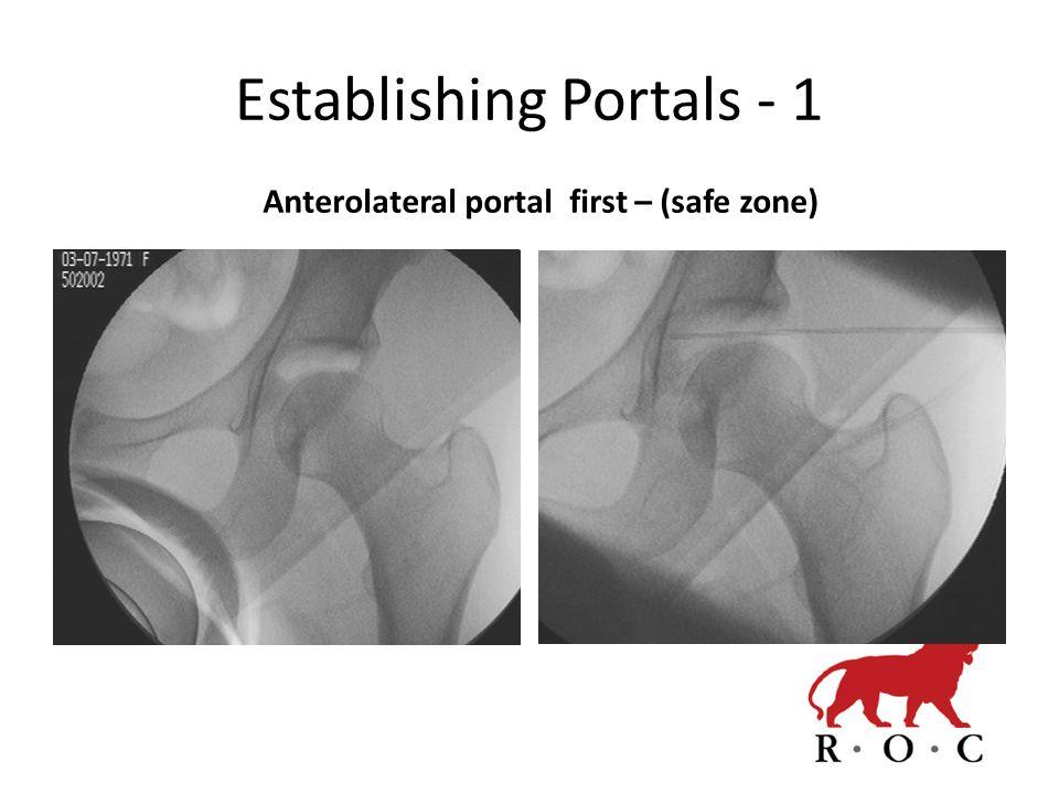 Establishing Portals - 1 Anterolateral portal first – (safe zone)