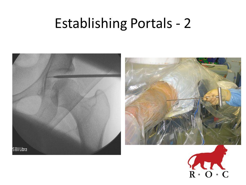 Establishing Portals - 2