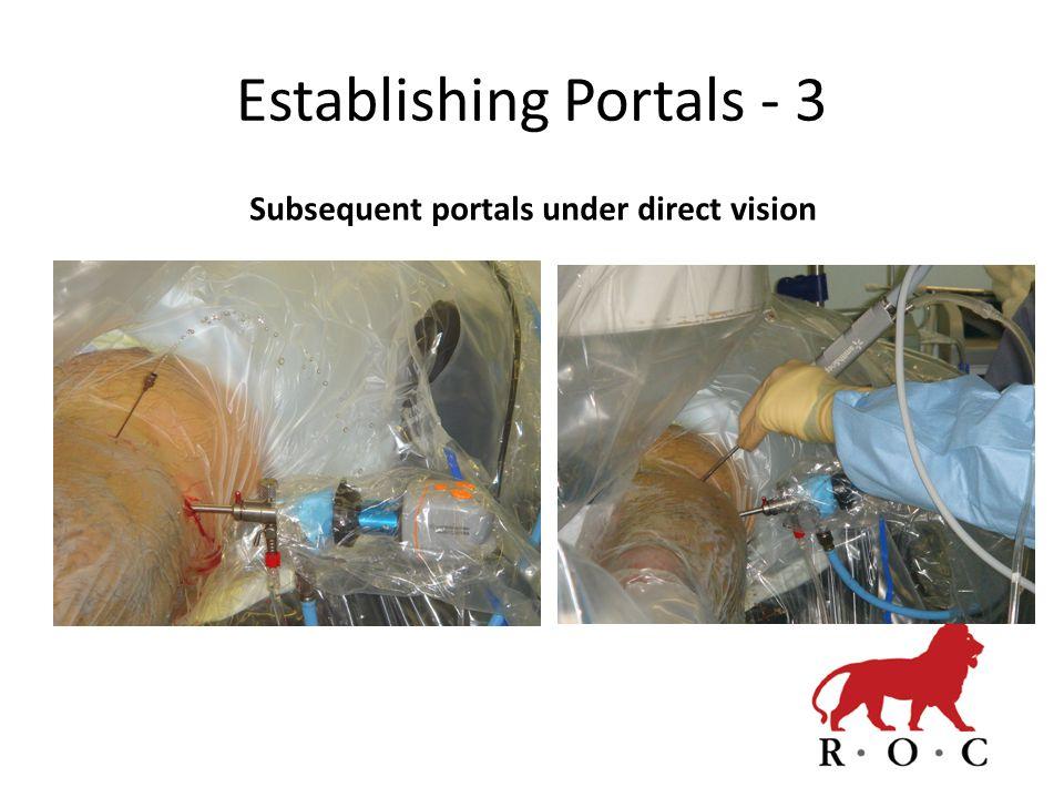 Establishing Portals - 3 Subsequent portals under direct vision