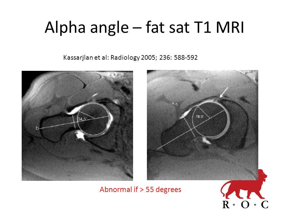 Alpha angle – fat sat T1 MRI Kassarjlan et al: Radiology 2005; 236: 588-592 Abnormal if > 55 degrees