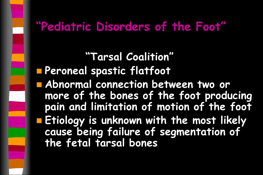 Pediatric Disorders of the Foot Tarsal Coalition Peroneal spastic flatfoot Abnormal connection between two or more of the bones of the foot producing pain and limitation of motion of the foot Etiology is unknown with the most likely cause being failure of segmentation of the fetal tarsal bones