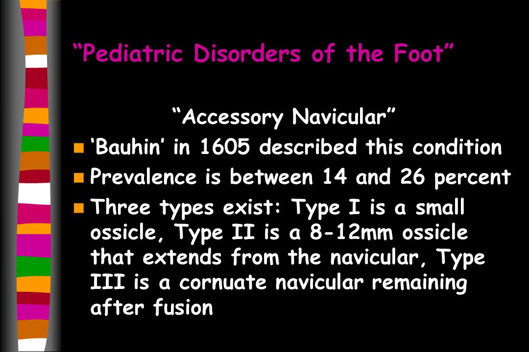 Pediatric Disorders of the Foot Accessory Navicular Bauhin in 1605 described this condition Prevalence is between 14 and 26 percent Three types exist: Type I is a small ossicle, Type II is a 8-12mm ossicle that extends from the navicular, Type III is a cornuate navicular remaining after fusion
