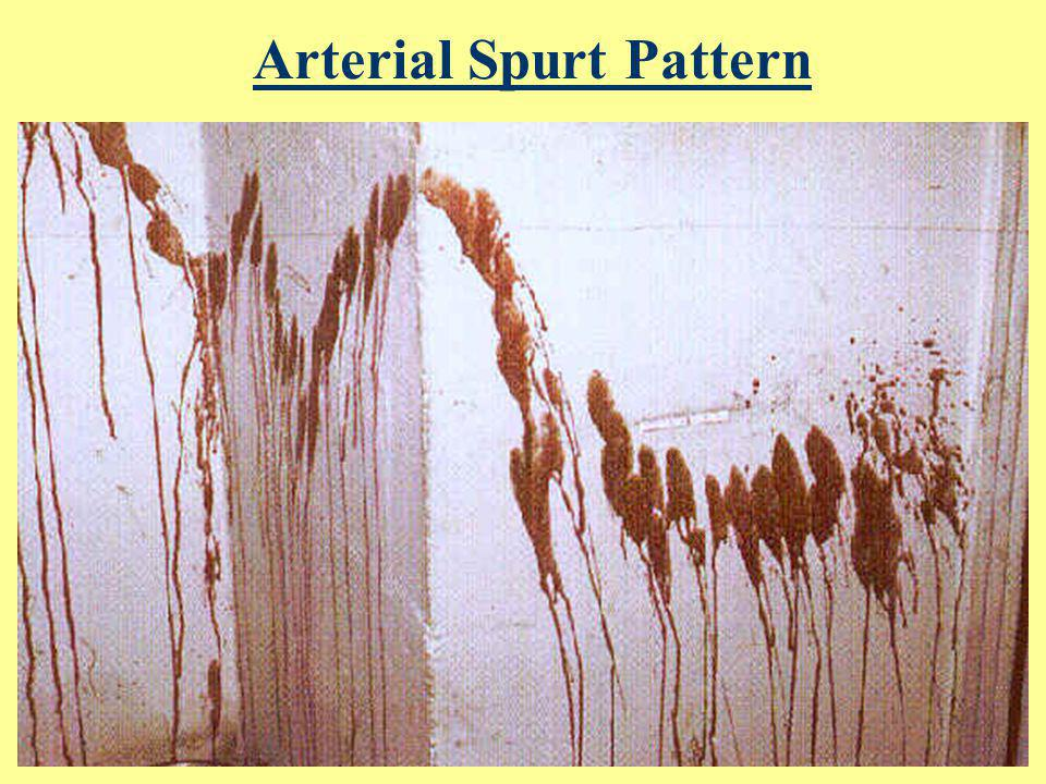 Arterial Spurt Pattern Blood exiting body under arterial pressure (120 mm Hg); corresponds to heart beating Large stains with downward flow on vertica