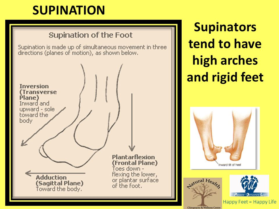 Supinators tend to have high arches and rigid feet SUPINATION