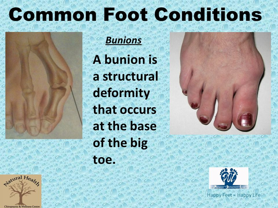 Happy Feet = Happy Life A bunion is a structural deformity that occurs at the base of the big toe. Common Foot Conditions Bunions