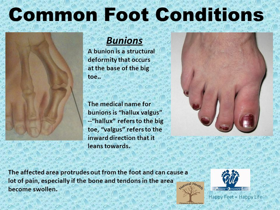 Happy Feet = Happy Life A bunion is a structural deformity that occurs at the base of the big toe.. Bunions The affected area protrudes out from the f