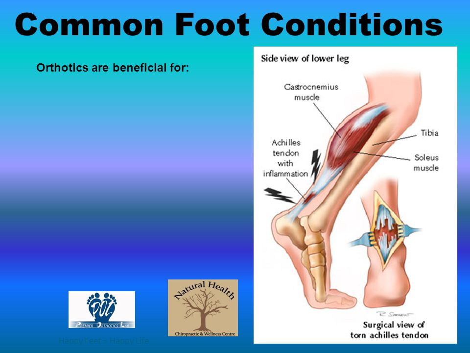 Happy Feet = Happy Life Orthotics are beneficial for: Common Foot Conditions