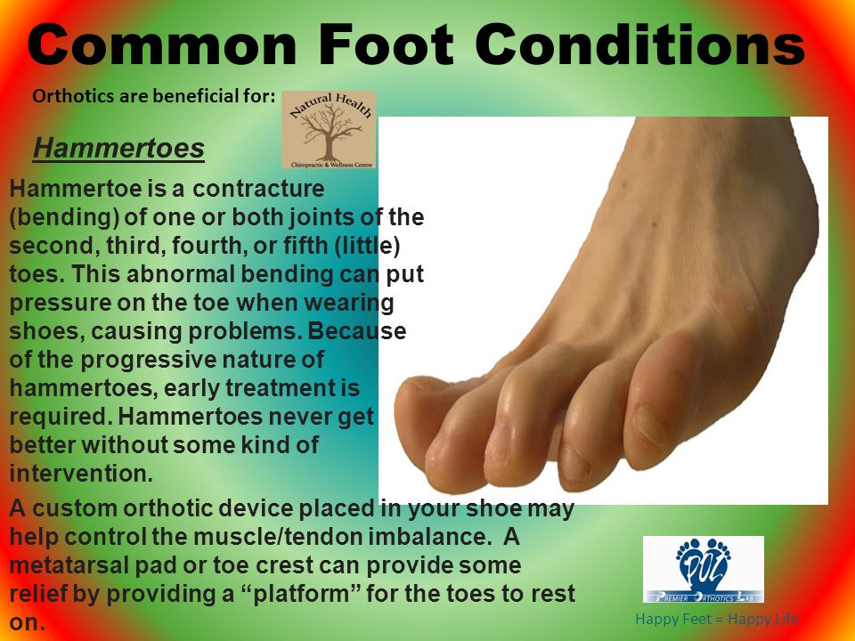 Happy Feet = Happy Life Hammertoe is a contracture (bending) of one or both joints of the second, third, fourth, or fifth (little) toes. This abnormal