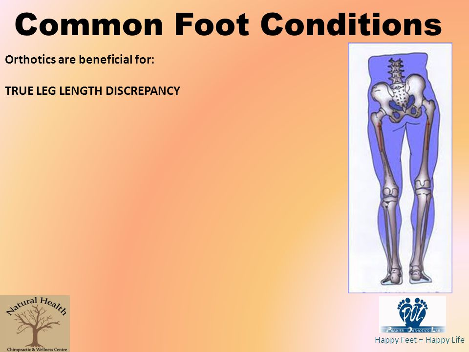 Happy Feet = Happy Life Common Foot Conditions Orthotics are beneficial for: TRUE LEG LENGTH DISCREPANCY