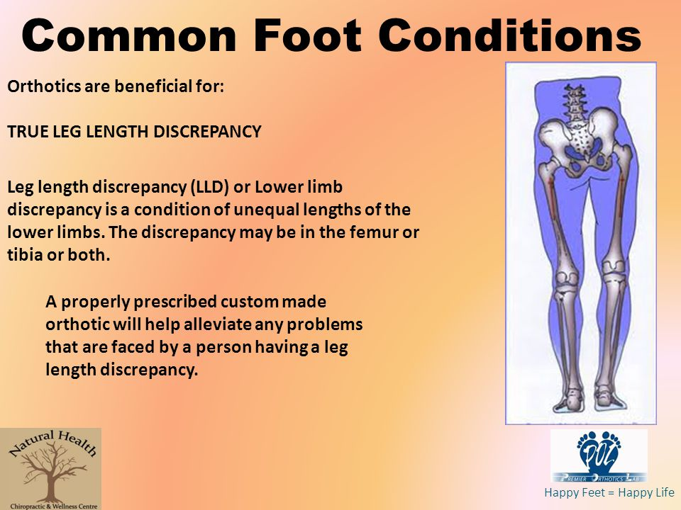 Happy Feet = Happy Life Common Foot Conditions Orthotics are beneficial for: TRUE LEG LENGTH DISCREPANCY Leg length discrepancy (LLD) or Lower limb di