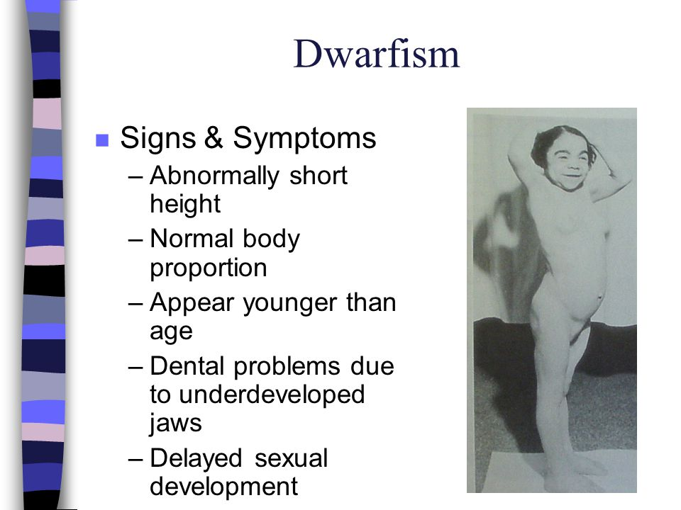 Dwarfism n Signs & Symptoms –Abnormally short height –Normal body proportion –Appear younger than age –Dental problems due to underdeveloped jaws –Del