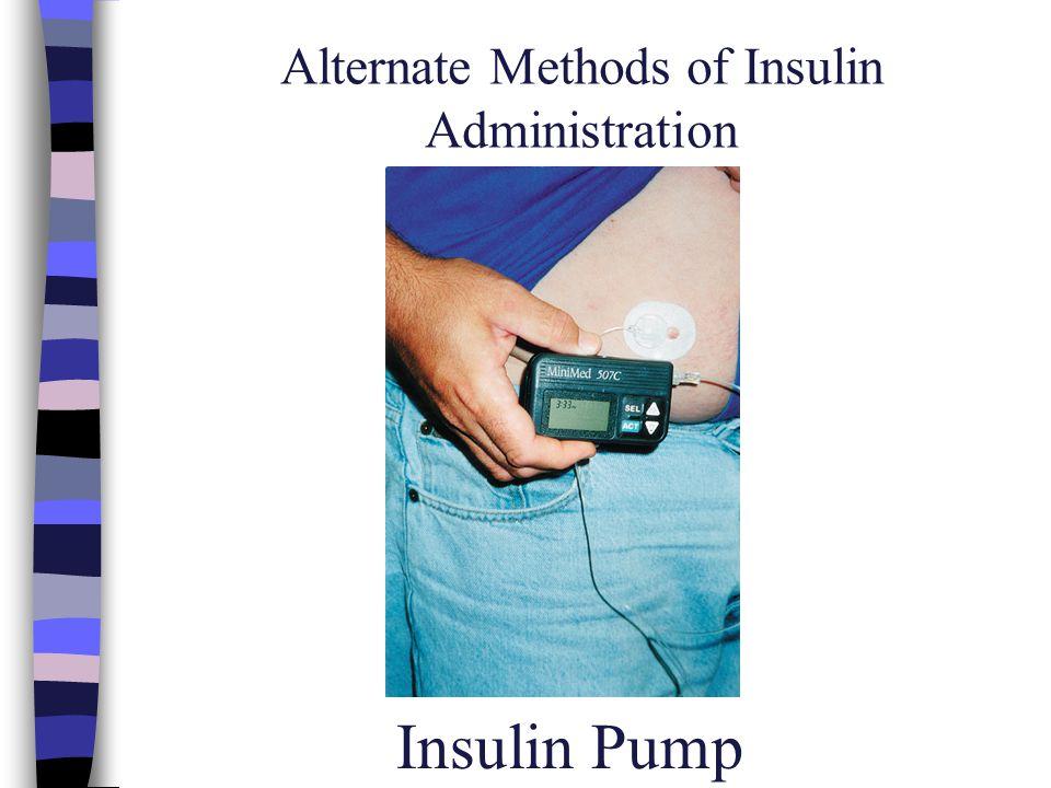 Alternate Methods of Insulin Administration Insulin Pump