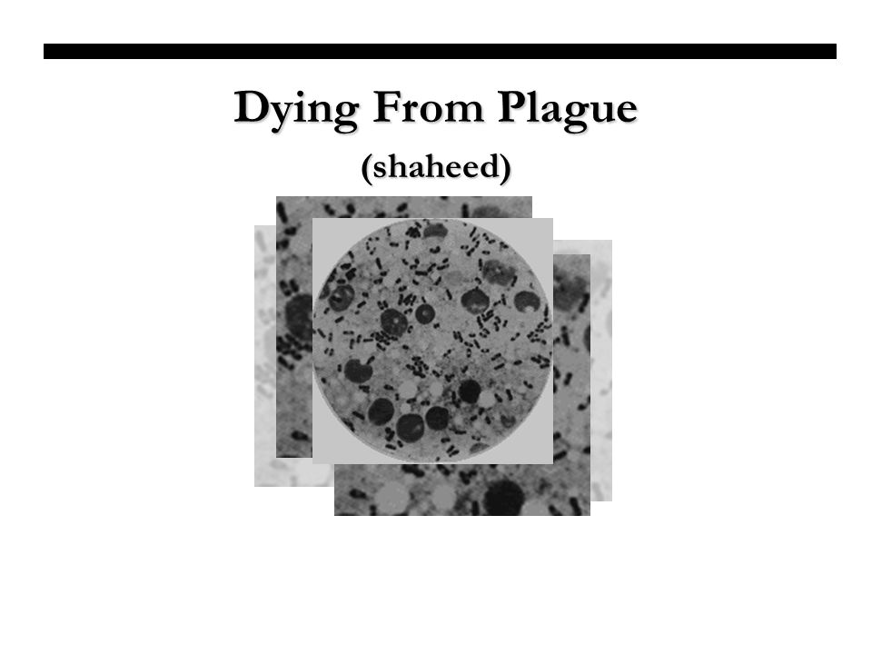 Dying From Plague (shaheed)