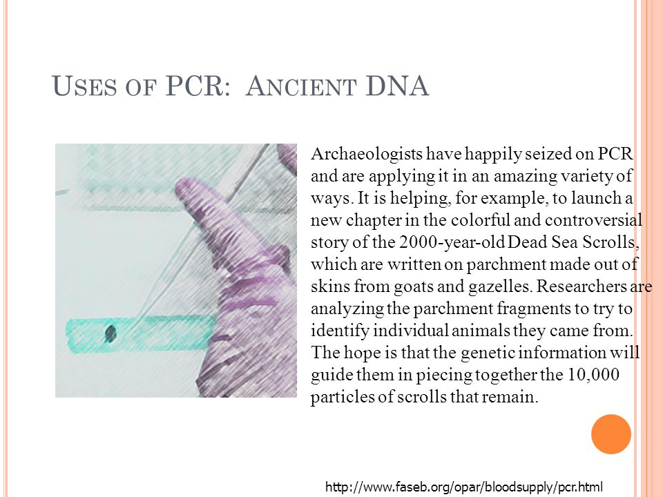 U SES OF PCR: A NCIENT DNA http://www.faseb.org/opar/bloodsupply/pcr.html Archaeologists have happily seized on PCR and are applying it in an amazing variety of ways.