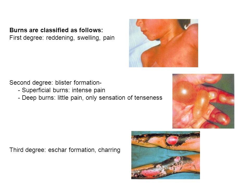 Burns are classified as follows: First degree: reddening, swelling, pain Second degree: blister formation- - Superficial burns: intense pain - Deep bu