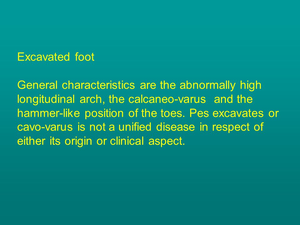 Excavated foot General characteristics are the abnormally high longitudinal arch, the calcaneo-varus and the hammer-like position of the toes.