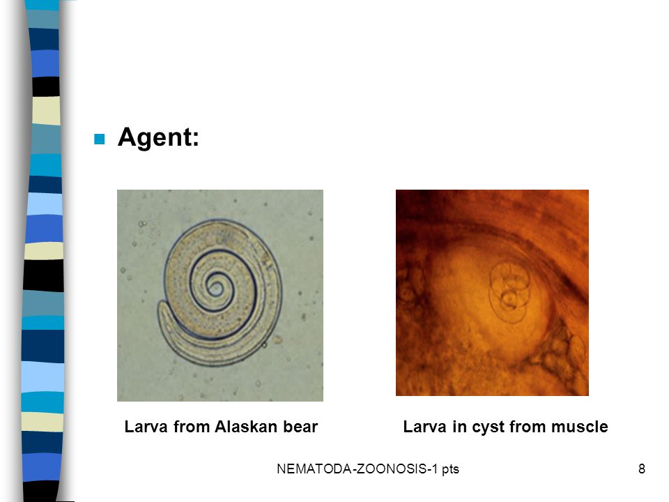 n Agent: Larva in cyst from muscleLarva from Alaskan bear 8NEMATODA -ZOONOSIS-1 pts
